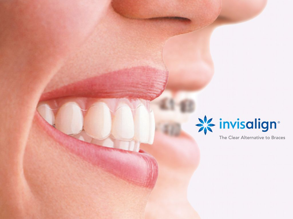 Invisalign Certified Dentist